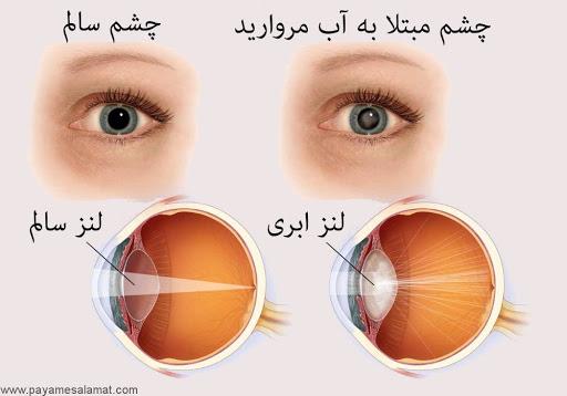 چشم مبتلا به آب مروارید